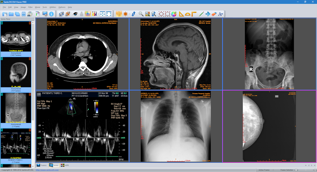 Top 15 free dicom viewers for doctors: windows, linux and mac osx.