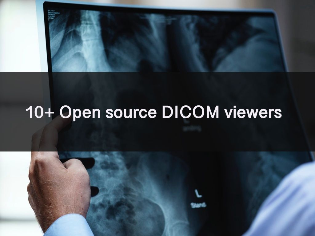 Best 14 Open source & Free DICOM viewers (Linux, Mac OSX, and Windows)