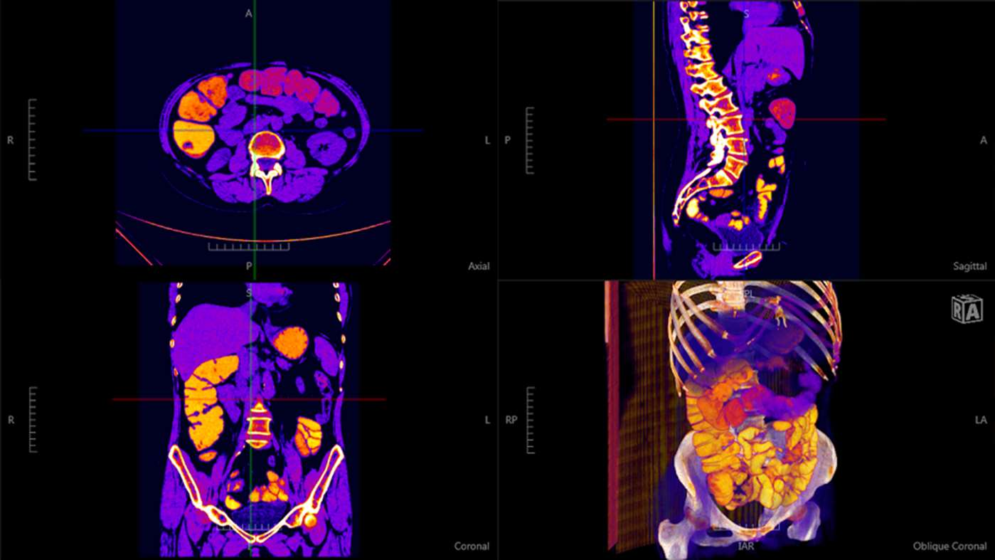 Navegatium:A Free 2D/3D DICOM Viewer with 3D Printing support for Windows