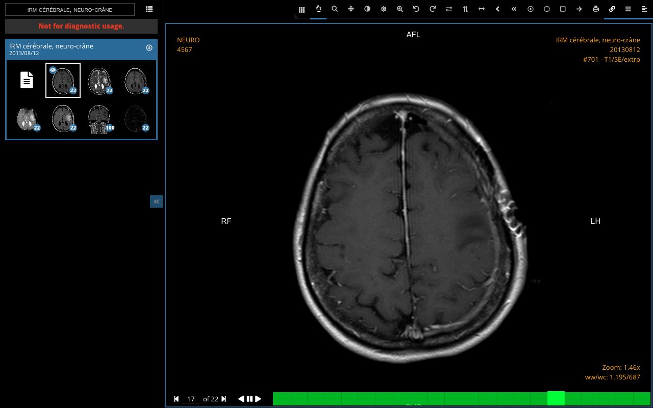 15 Best Open source Browser & Web-based DICOM Viewers