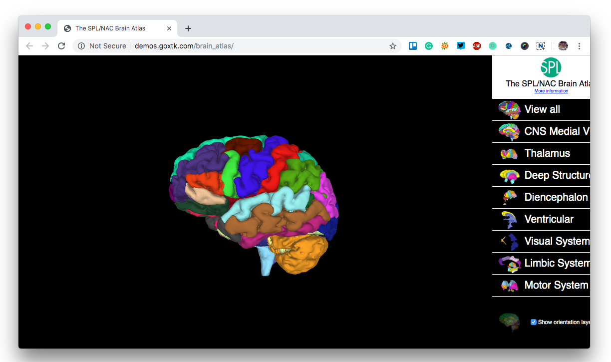 The X Toolkit: Open source Browser-based 3D Scientific & Medical