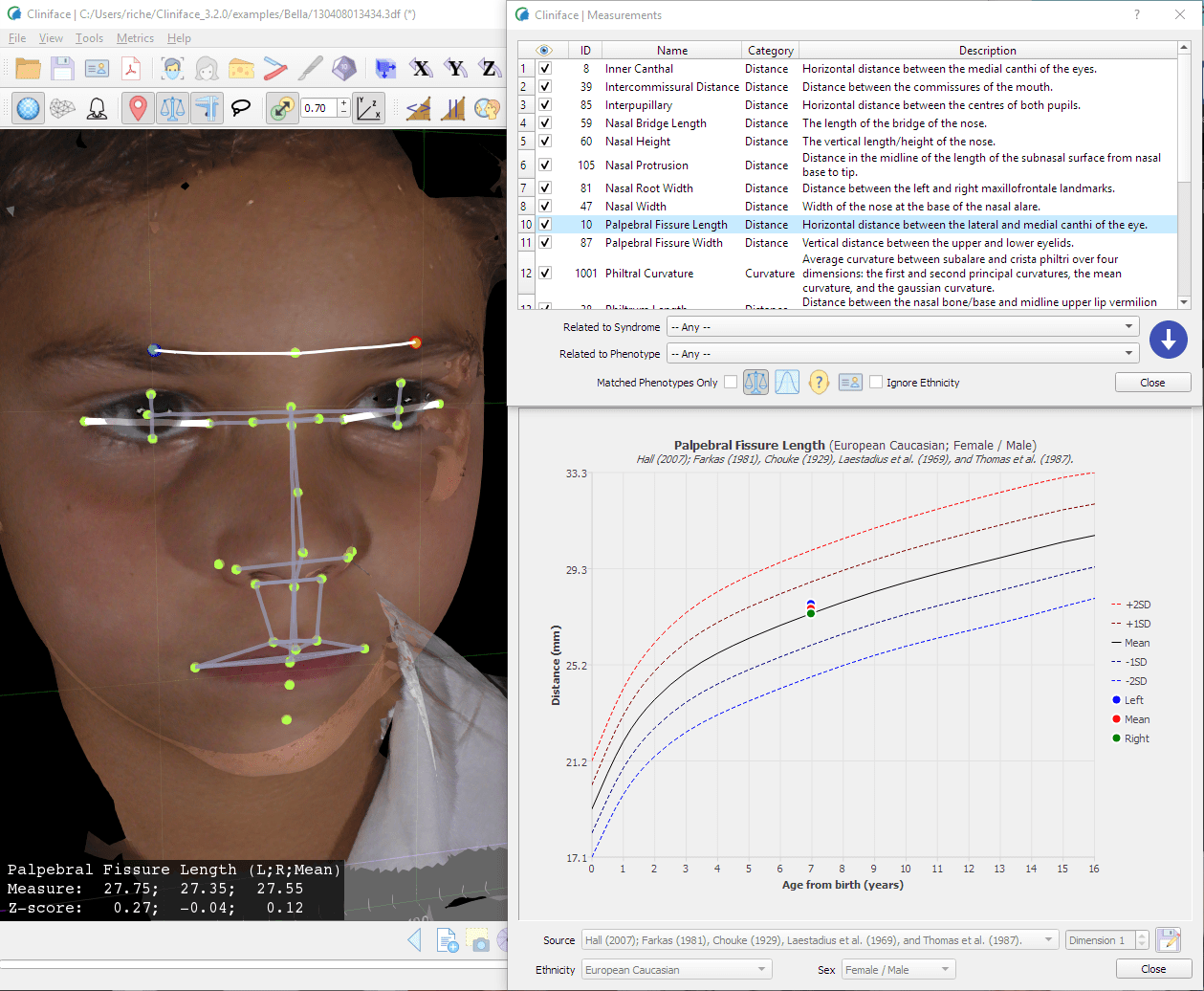 Cliniface: Open source 3D Facial Image Visualization and Analysis Software