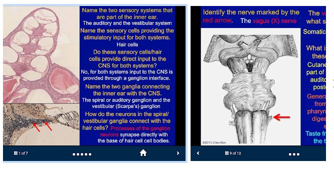 Neuroanatomy - SecondLook