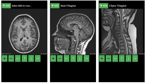 MRI Viewer