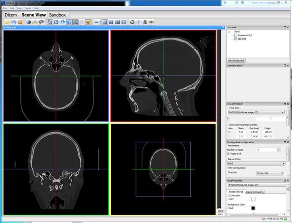 Gimias: Open source Framework for building Medical Imaging & Medical Simulation applications for Windows and Linux