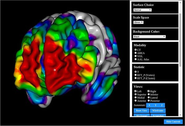 BrainBrowser: Open source Web-based Brain Visualization with Volume & Surface viewers