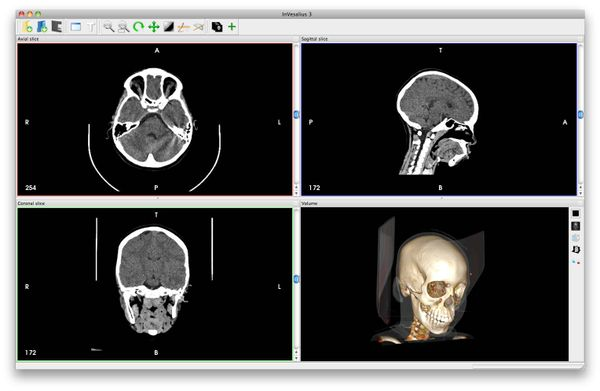InVesalius: Open source 3D Medical Imaging reconstruction program