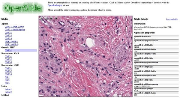 OpenSlide: The Whole-Slide image processing library that stands behind most of Digital Pathology Projects